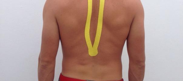 Tapping y fisioterapia para acelerar la recuperación